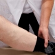 Stijve knie bij bewegen