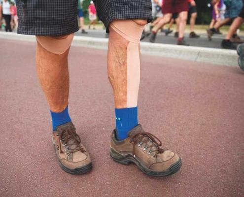Knieprothesen van meneer Wolf
